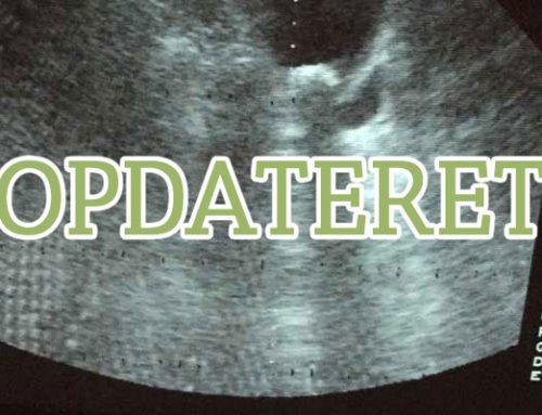Opdateret: Hvad er Ektopiske Ureter (EU)?