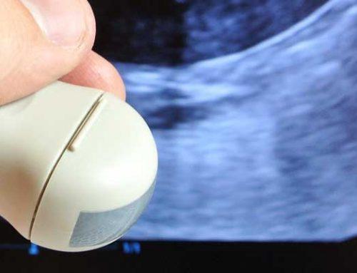 Opdatering om ektopiske ureter pr. januar 2019